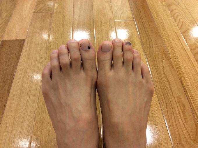 ランニングでできた足の爪の血豆
